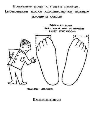 Плоскостопие. Нужна ли обувь малышу?
