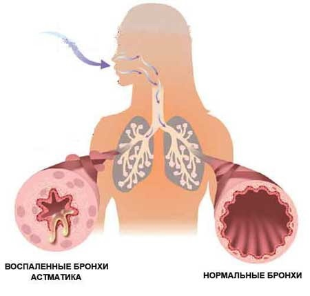 http://www.perunica.ru/uploads/posts/2011-11/1321799119_3.jpeg